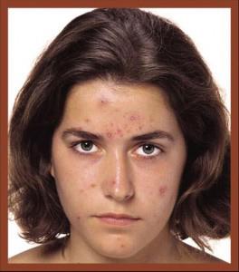 akne-sebepleri-hastalii-nasil-or-0