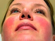 Аллергическая реакция на холод