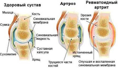 Артроз и артрит