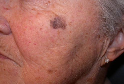 Старческая пигментация кожных покровов