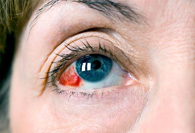 Признак ушиба глаза