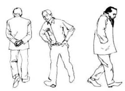 Влияние здоровья на походку человека
