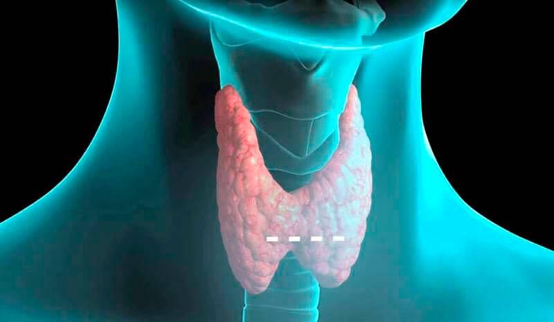 Щитовидная железа человека